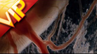 胚胎血管血流特写镜头高清实拍视频素材